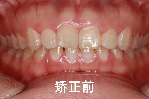 美悦日记 | 牙齿前突、牙缝大怎么办?看小姐姐的微笑逆袭之路!