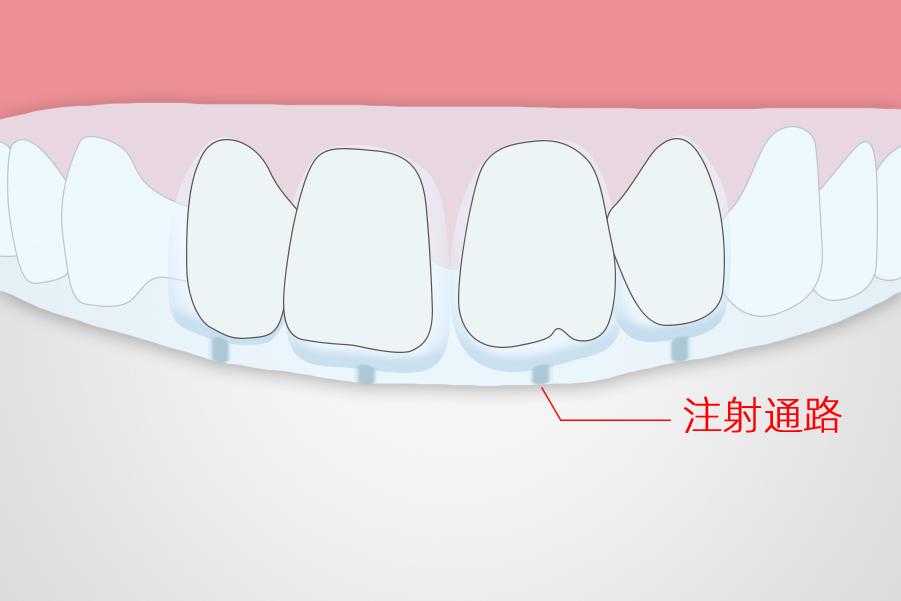 美学修复沟通难?教你用沪鸽美佳印透明硅橡胶提前展示治疗后的美学效果
