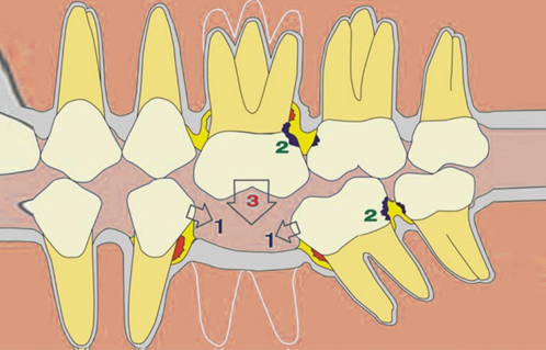 牙科医生注意了!为何沪鸽美晶瓷树脂块制作临时冠能符合国家法规要求!