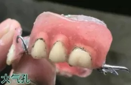 沪鸽这套充胶方法,有效避免活动牙基托气泡和发白,减少修补和返工!