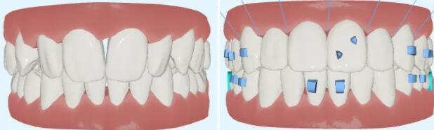 【美悦大课堂】隐形正畸上颌推磨牙远移解除前牙拥挤远中关系病例分享