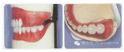 用护嵴舒排全口义齿,复诊率低,患者满意率高