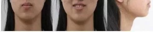 【美悦大课堂】隐形正畸推下颌磨牙远移案例解析分享