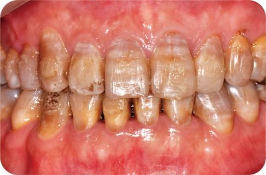深色基牙的全瓷修复关键因素