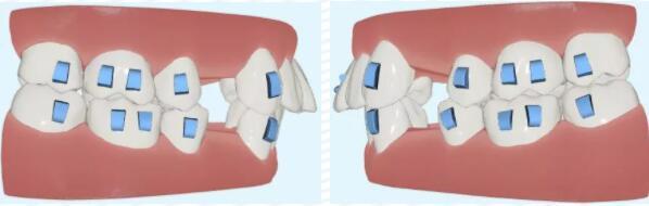 【美悦大课堂】隐形正畸:拔四颗前磨牙解除牙列拥挤方案解析分享