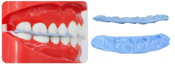 牙医干货 | 只需这3步,准确记录咬合关系,让修复体制作更精准!