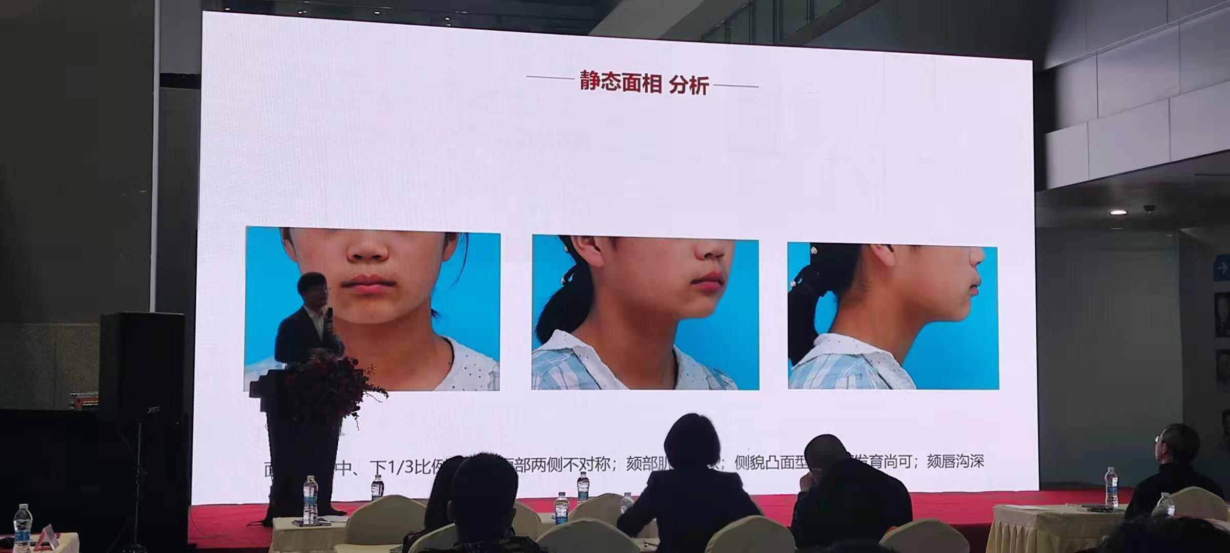 沪鸽口腔2021南方(重庆)牙科展精彩回顾