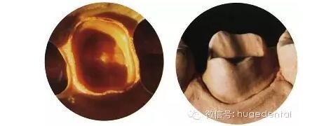 美佳印硅橡胶填补中国空白,易学易会、省钱品质好,让更多中国百姓受益!