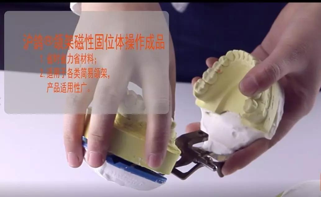 沪鸽磁性固位体转移颌关系--方便快捷、成本不增加,推荐大家用!