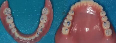 【使用护嵴舒,佩戴义齿后非常舒适、咀嚼效率高、患者非常满意】 作者:吴世超