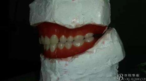 【护嵴舒合成树脂牙,咀嚼东西很给力,装完牙年轻了十多岁】 作者:瞿建秀