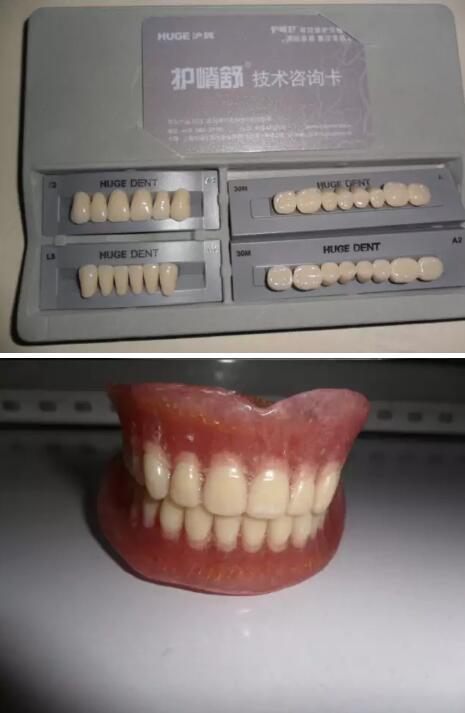 【护嵴舒合成树脂牙,患者满意,维修率低,保护剩余牙槽嵴,还提高门诊声誉】 作者:孙俊辉