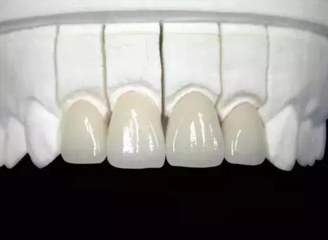 为何推广美晶瓷全瓷牙?
