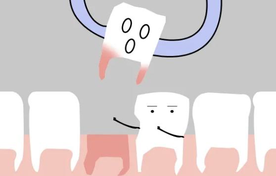沪鸽美悦大课堂丨隐形正畸为什么要拔我的牙?