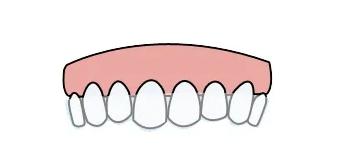 沪鸽美悦大课堂丨不戴后期保持产品,你的牙就白整了