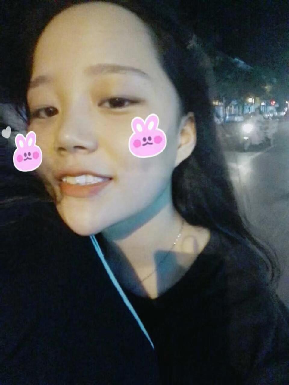 美悦日记 | 牙齿严重拥挤,21副隐形牙套,悄悄改变了她微笑的模样!