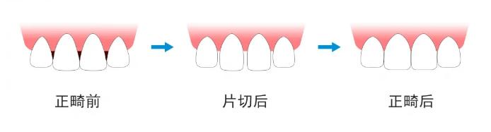 """沪鸽美悦大课堂丨话说""""黑三角""""的前世今生"""