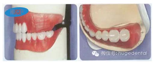 用护嵴舒排全口义齿,复诊率低,患者满意度高