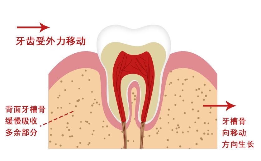 美悦大课堂   牙齿矫治为什么要定期复诊?